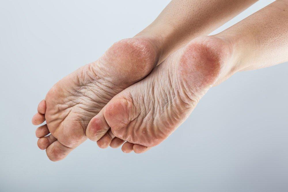 Trockene Füße